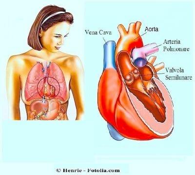 Dolore al petto o toracico alto o basso gola e stomaco for Bruciore alla schiena in alto