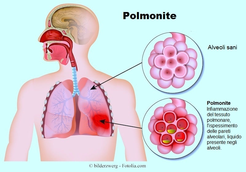 Polmonite,sintomi,infiammazione,polmoni