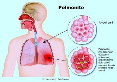 Sintomi Della Polmonite Virale O Batterica Nei Bambini E