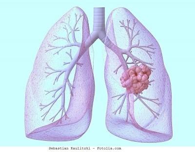 Metastasi al polmone