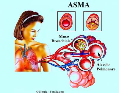 Quali vitamine complesse accettare a psoriasi