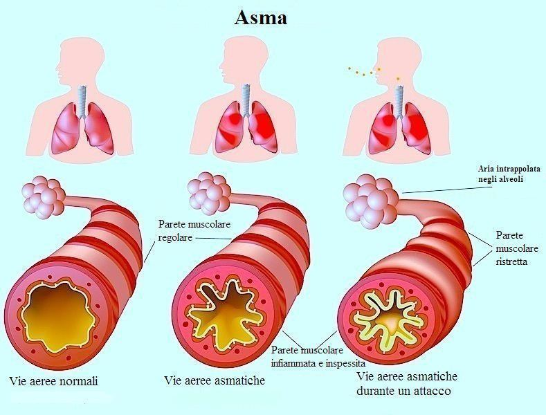 Asma bronchiale,bronchi