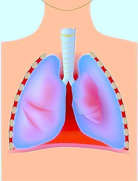 Spontanpneumothorax,Lunge,Kollaps