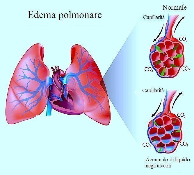 Edema polmonare,liquido,infiammazione