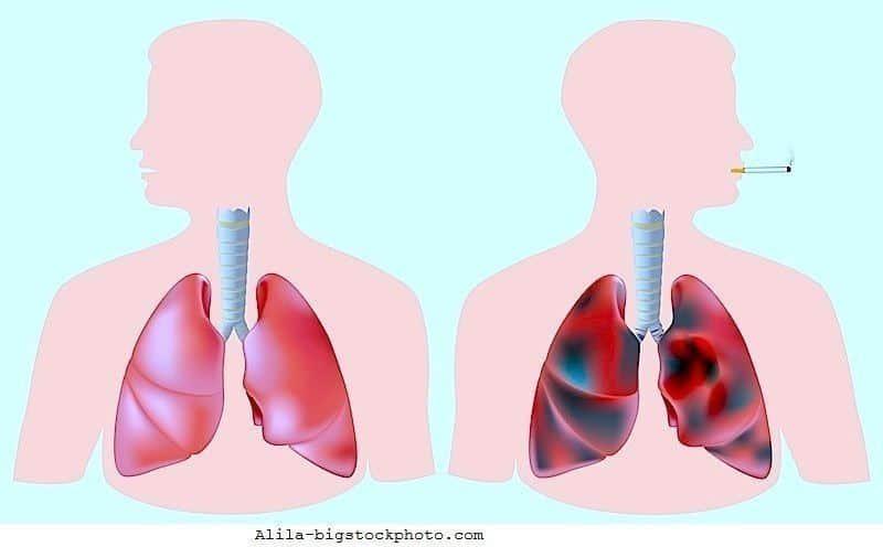 Tumore polmonare,metastasi