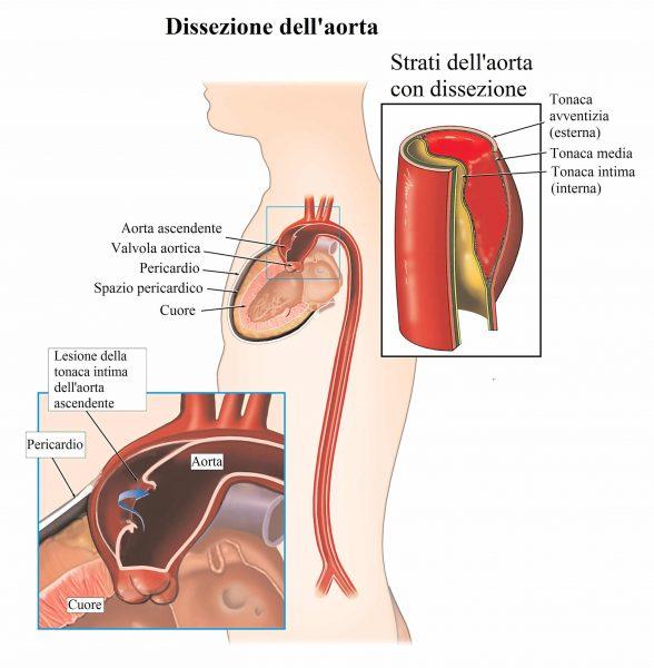Dissezione aortica,aorta,arteria