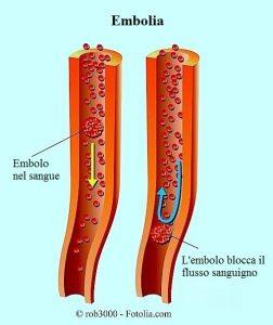embolo-embolia