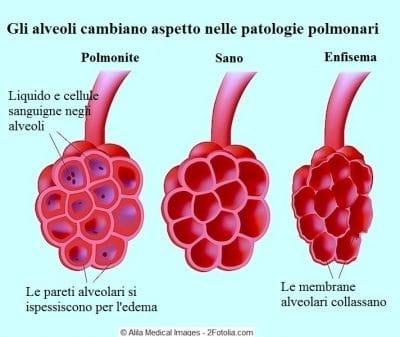 Enfisema polmonare,bronchi,polmonite