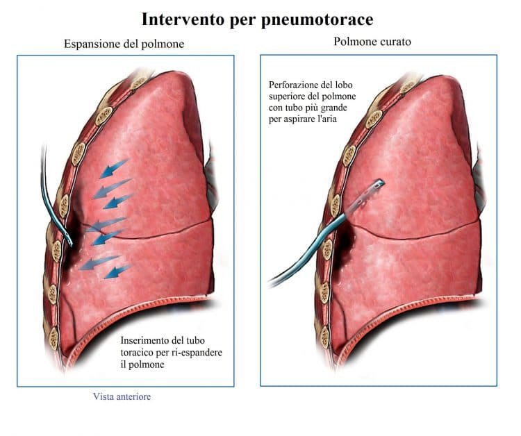 intervento per pneumotorace