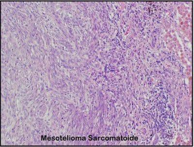 mesotelioma sacromatoide