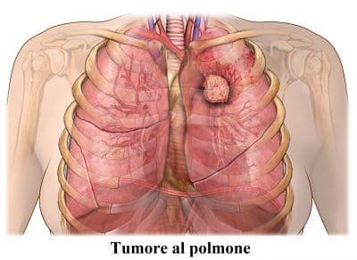 Metastasi polmonare,polmone,tumore,cancro