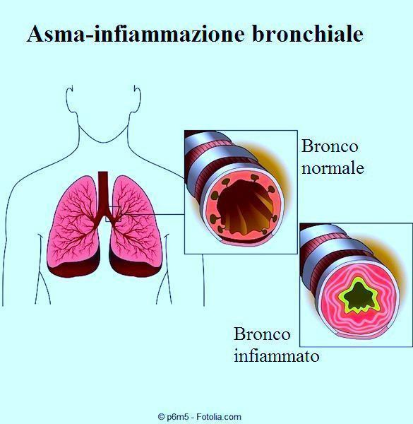 Tosse,bronchi,bronchite
