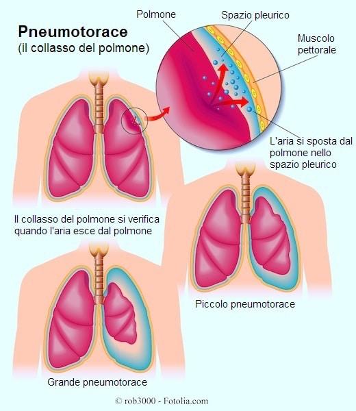 Pneumotorace spontaneo o da trauma
