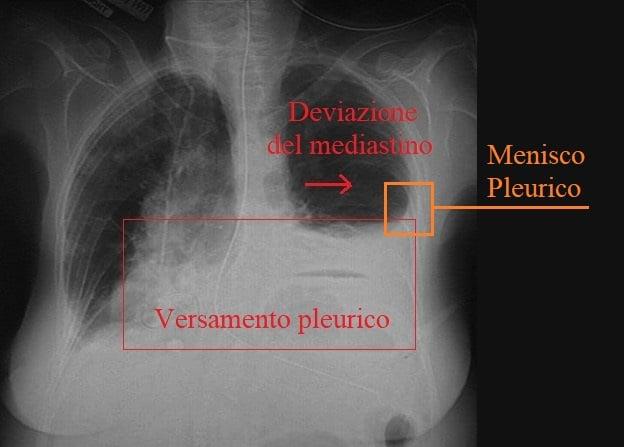radiografia,versamento pleurico, spostamento mediastino