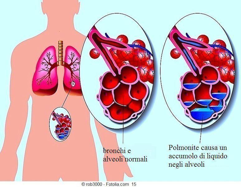 Polmonite,sintomi,alveoli