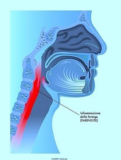 Sintomi della faringite e rimedi