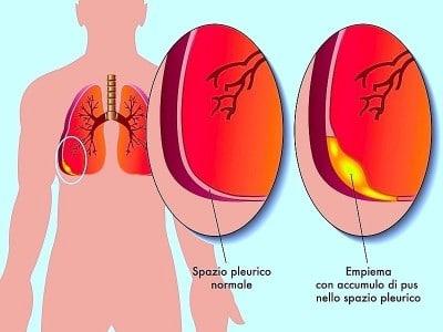Sintomi della pleurite e cura