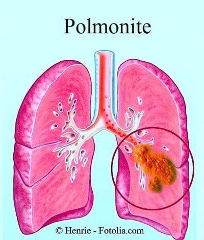 Sintomi della Polmonite