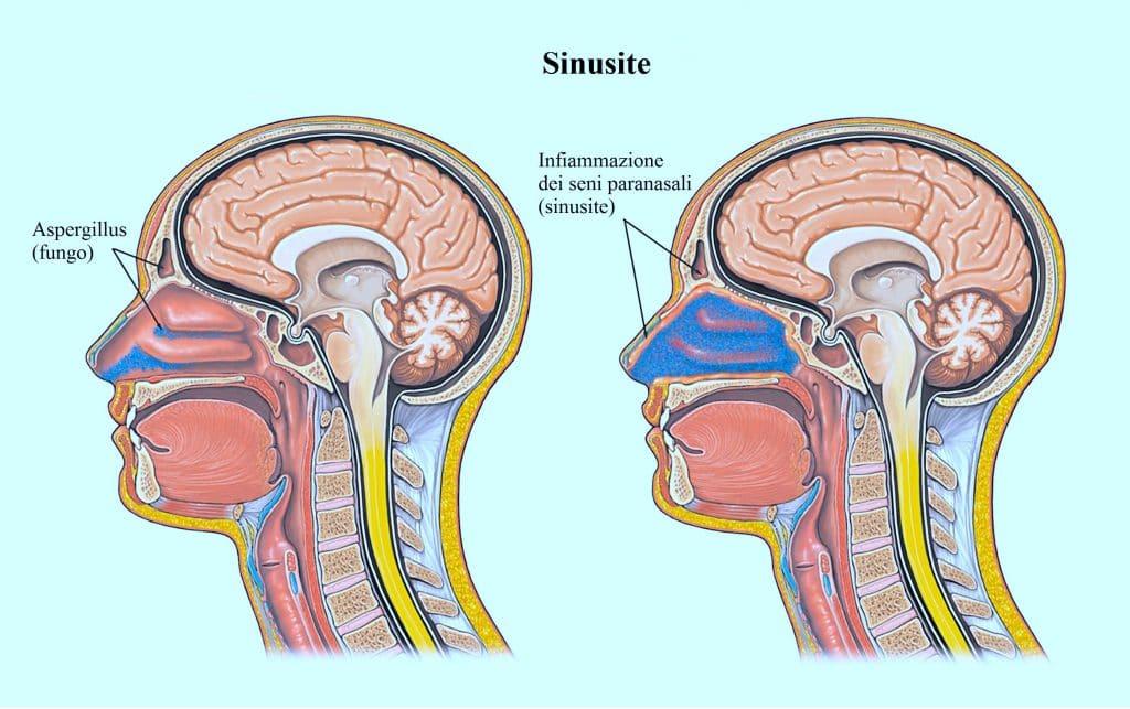 sinusite,naso chiuso