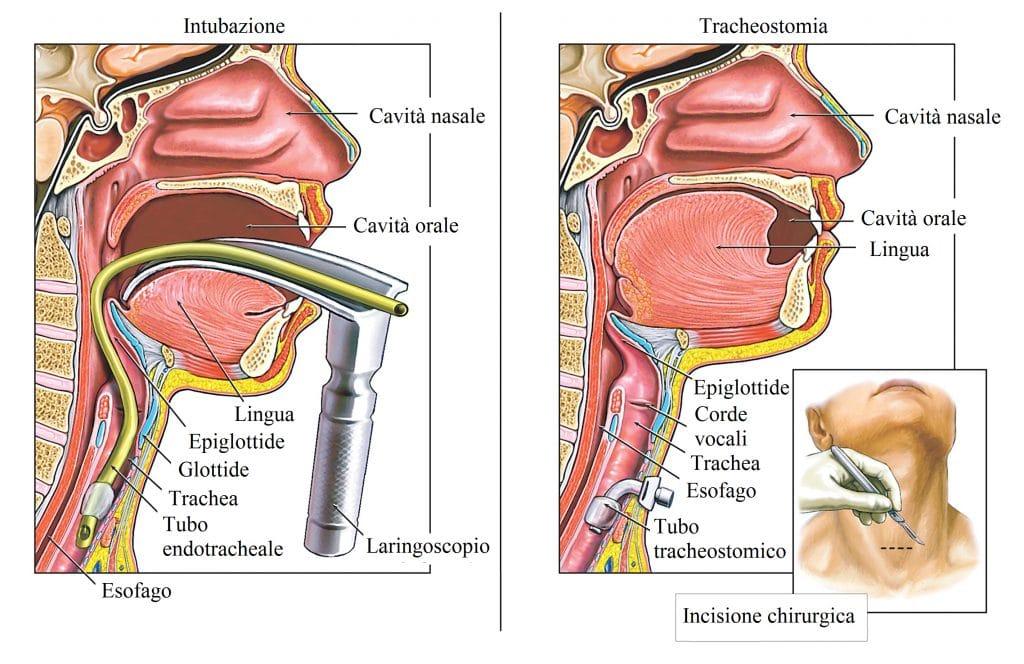 Tracheostomia,intervento chirurgico,tracheite,intubazione