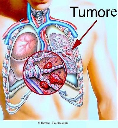 tumore al fegato come si muore