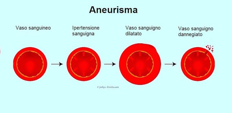 Aneurisma, pressione alta,scoppio,arteria,sangue