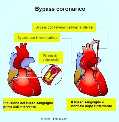 Bypass coronarico