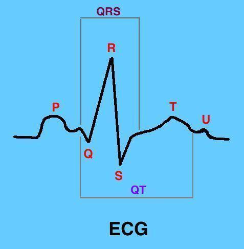 elettrocardiogramma,onda,qrs,st
