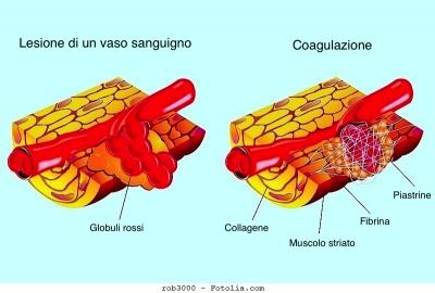 Ematoma muscolare