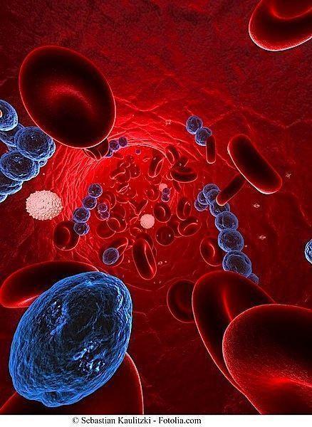 Batteri,pericardite,infezione
