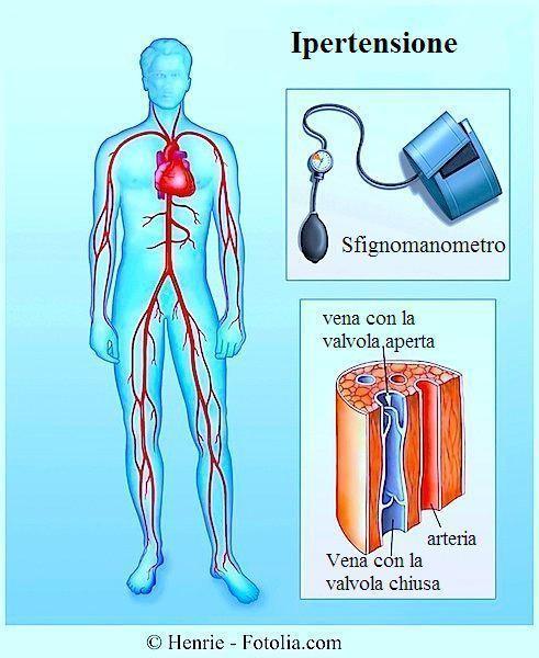 Ipertensione arteriosa o pressione alta, sintomi e dieta