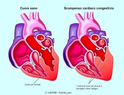 Scompenso cardiaco congestizio