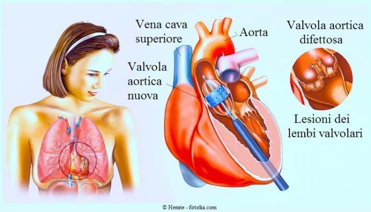 Tavi,stenosi aortica,sostituzione,catetere