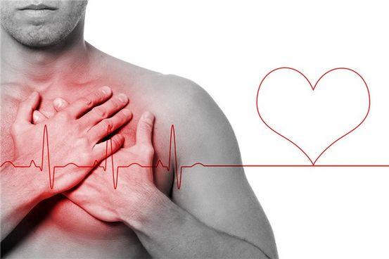 Infarto del miocardio | sintomi e cause | donne e uomini