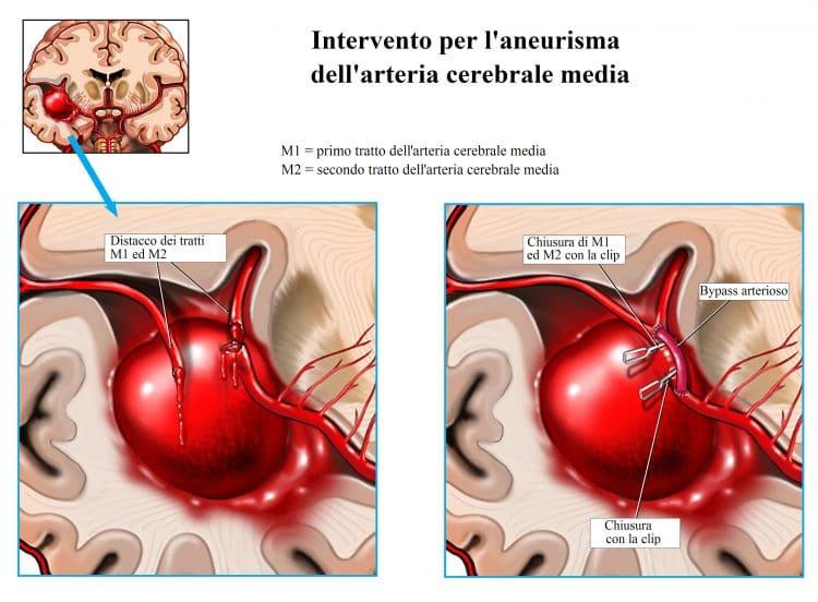 Aneurisma cerebale,ematoma,arteria cerebrale media