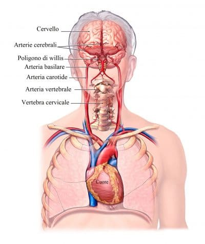 Emorragia cerebrale,carotidi,arteria vertebrale