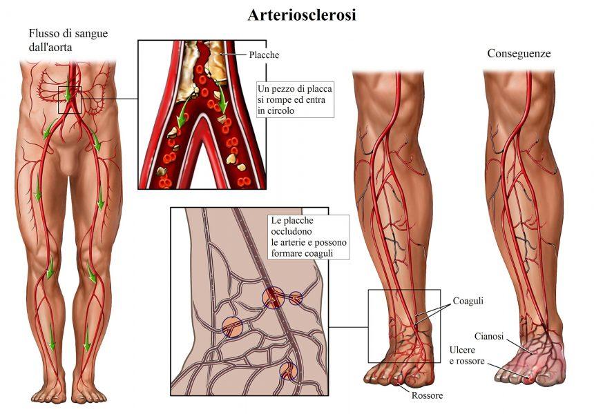 arteriosclerosi,aterosclerosi,placche nelle arterie,cianosi,ulcere,piede