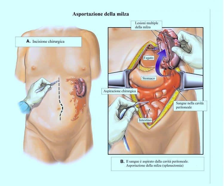 Asportazione della milza,rimozione,intervento,operazione