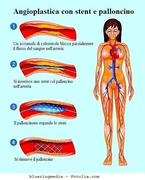 Stent,stenosi carotidea,aterosclerosi