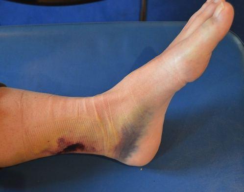 Dopo operazione su eliminazione di trombosi di gambe