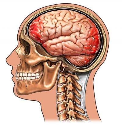 emorragia cerebrale,trauma cranico