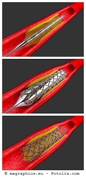 stent,palloncino,coronarie
