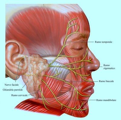 nervo faciale,paralisi,ipertensione
