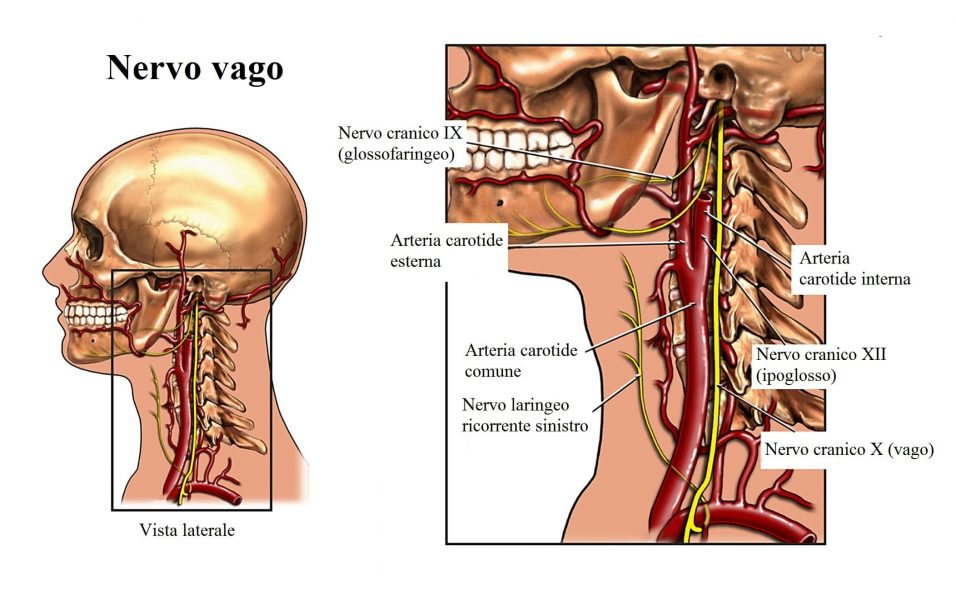 Carotid Endarterectomy with Subsequent Cranial Nerve Damage