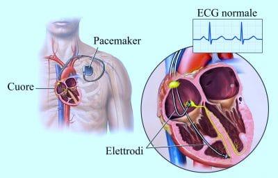 Pacemaker,elettrodi,stimolatore elettrico,aritmia,bradicardia,cuore