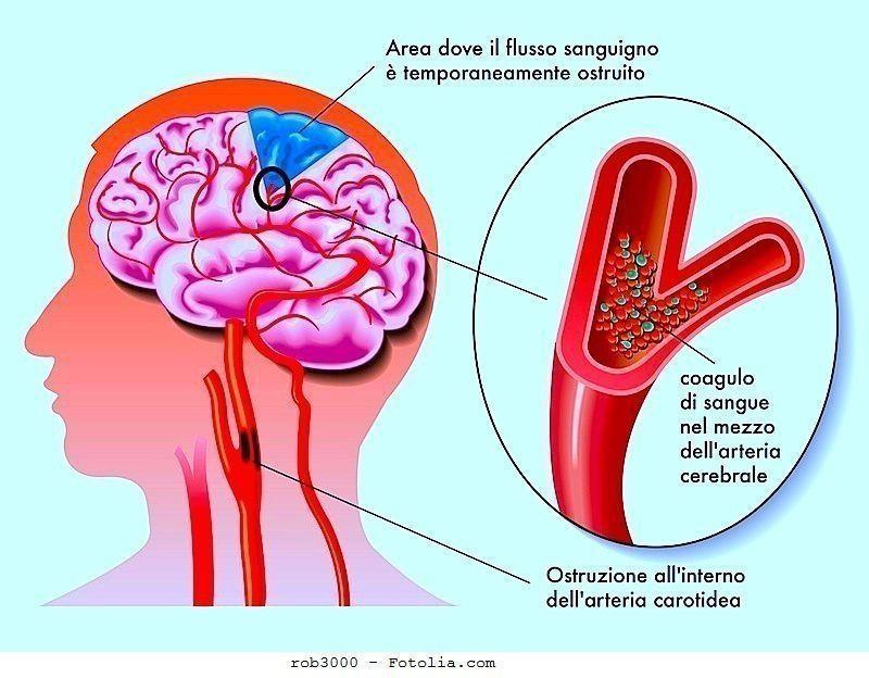 Stenosi carotide,arteria