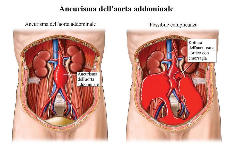Rottura dell'aneurisma,aorta,addominale