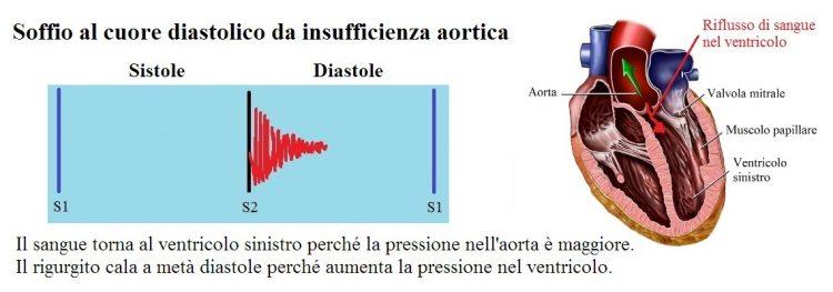 soffio diastolico,insufficienza aortica