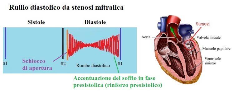 soffio-diastolico,stenosi mitrale