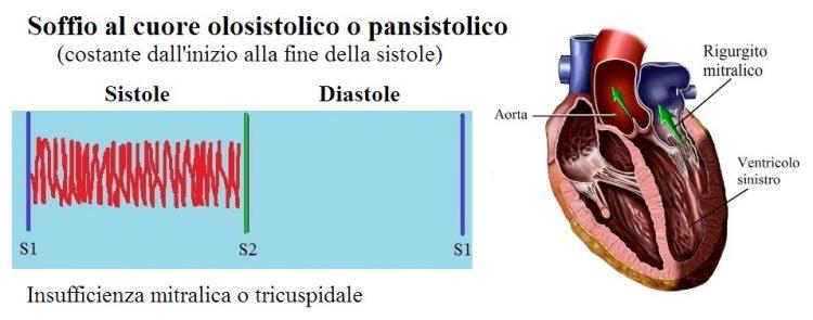 soffio,insufficienza mitrale,pan-sistolico